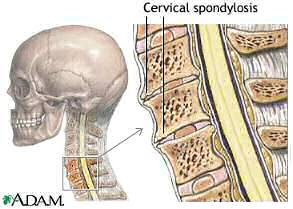 Cervical Spondylosis - Copyright remains with NLM and ADAM Inc.