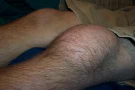bruised swollen knee since aug