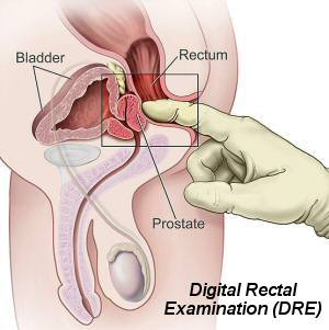 The Digital Rectal Examination - from Wikipedia